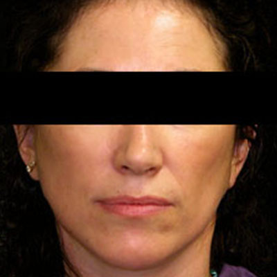 Thread Lift - Nose, Face Lifts, PDO - Cost, Pictures - Kuala