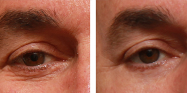 Ultrasound Eye Bag Removal - Non-surgical Treatment in