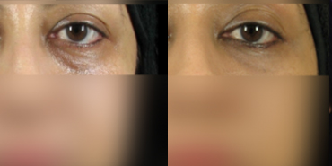 Ultrasound Eye Bag Removal Non Surgical Treatment In Malaysia