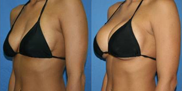 Breast Augmentation - Guide, Cost, Reviews in Malaysia - Nexus ...