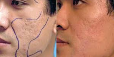 Laser Pore Treatment Enlarged Pores Treatment Q A Tips
