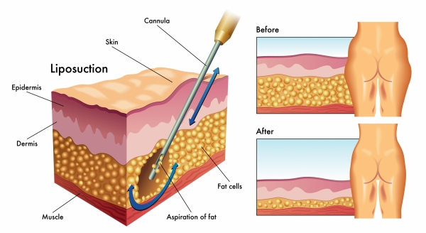 Liposculpture Vs Liposuction - Prices And Reviews In -8137